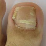 巻き爪(陥入爪)術後1カ月