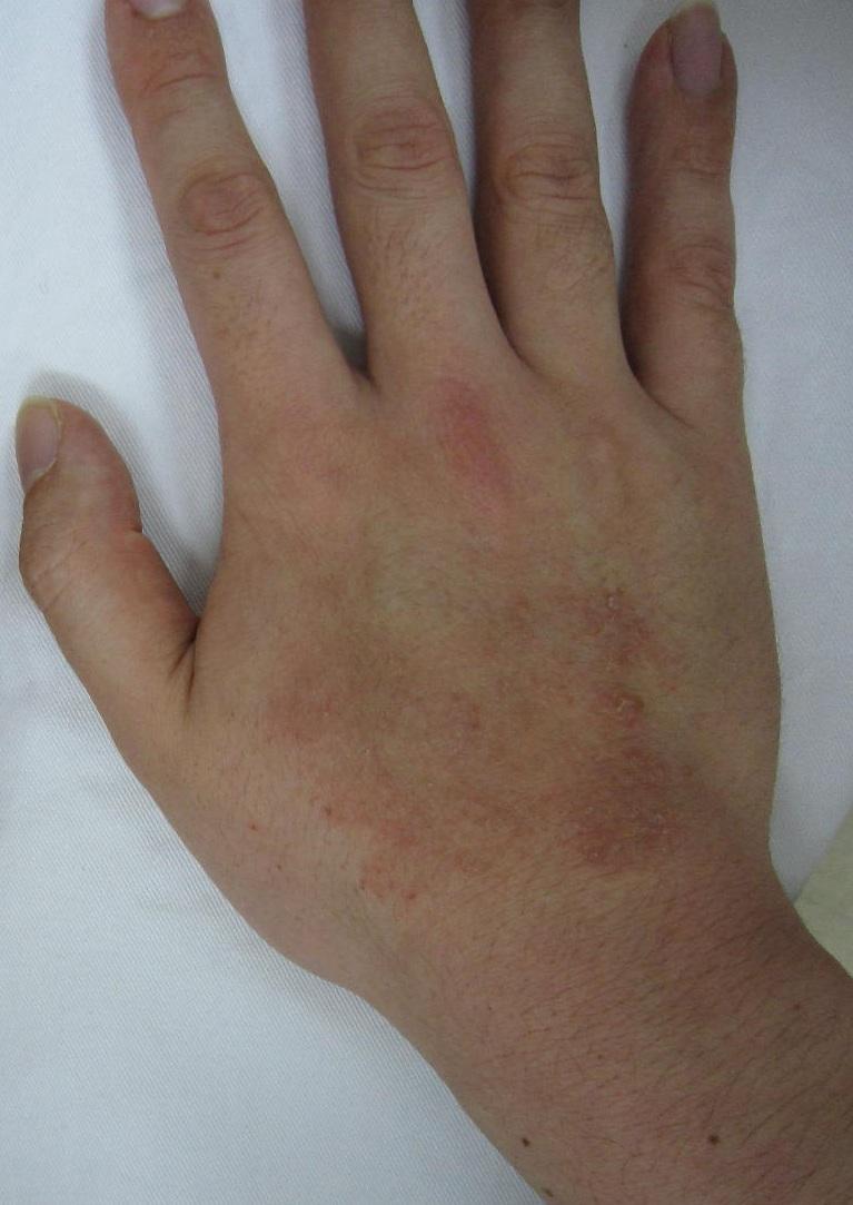 治療 手 湿疹 Ⅰ.手湿疹診療の基本的な考え方・Ⅱ.手湿疹診療の実際 -診断-|hifu・ka