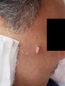 粉瘤(アテローム)摘出術中(内容物を排出)