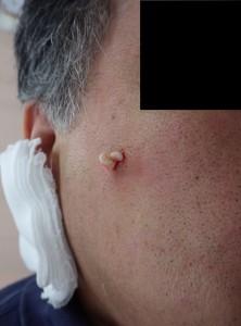 粉瘤(アテローム)摘出術中(粉瘤の被膜を摘出)