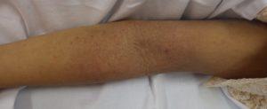 アトピー性皮膚炎 左腕10月4日
