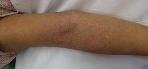 アトピー性皮膚炎 右腕7月20日