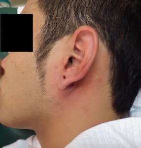 粉瘤(アテローム)摘出 術直後2
