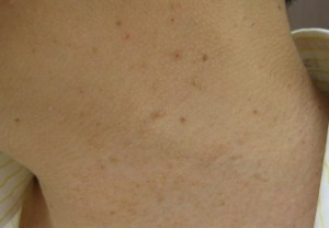 イボ切除 術後4日(左側)