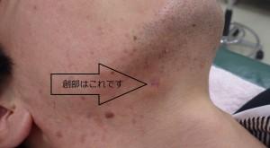 粉瘤(アテローム)摘出 術後1か月