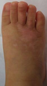 湿潤療法 加療2か月後(足)