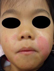 湿潤療法 加療後5日(顔正面)