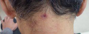 粉瘤(アテローム)摘出 術後2週間