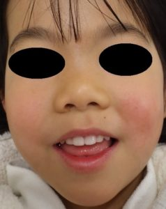 湿潤療法 3か月後(顔正面)