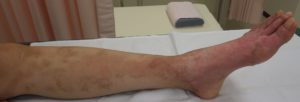 湿潤療法 加療後14日・側面
