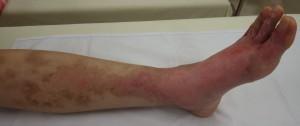 湿潤療法 加療後8日・側面