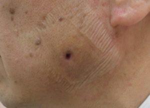 粉瘤(アテローム)摘出 術後6日
