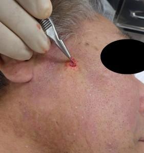 粉瘤(アテローム)摘出 術中(粉瘤被膜を摘出)