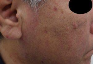 粉瘤(アテローム)摘出 術後2か月10日