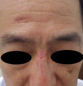 湿潤療法 加療後3か月
