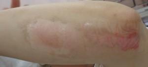 湿潤療法 加療後5日