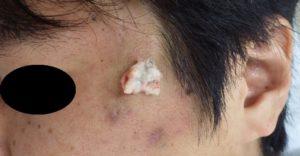 粉瘤(アテローム)摘出 術中(粉瘤内容物を排出)