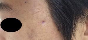 粉瘤(アテローム)摘出 術後14日