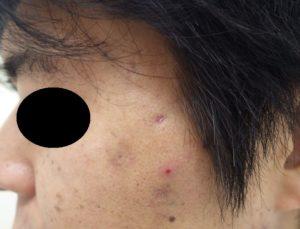 粉瘤(アテローム)摘出 術後21日