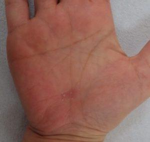 湿潤療法 加療後11日(手)