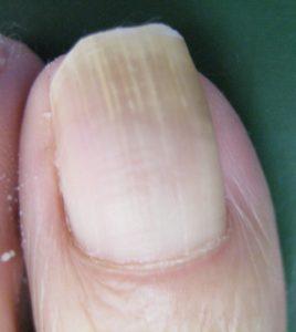 巻き爪(陥入爪) 術前1