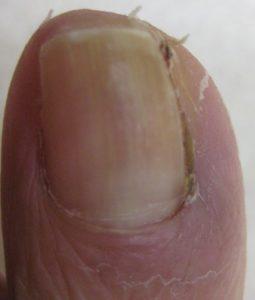 巻き爪(陥入爪) 術後1か月半