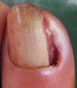巻き爪(陥入爪) 術後2日