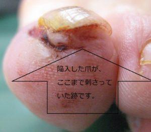 巻き爪(陥入爪) 術後5日(爪が刺さっていた跡))