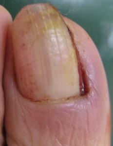 巻き爪(陥入爪) 術後5日