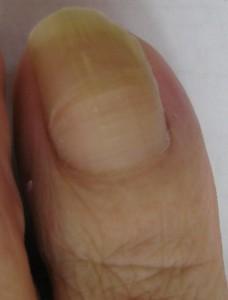 巻き爪(陥入爪) 術後9か月(1)