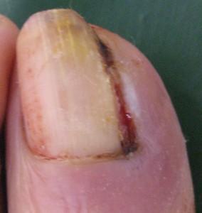 巻き爪(陥入爪) 術後9日