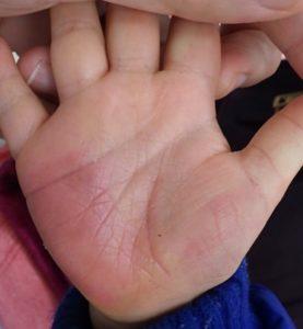 湿潤療法 受傷後22日