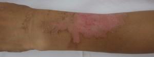 湿潤療法 加療後14日(背側)