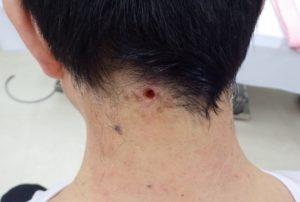 粉瘤(アテローム)摘出 術後5日