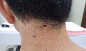 粉瘤(アテローム)摘出 術後8日