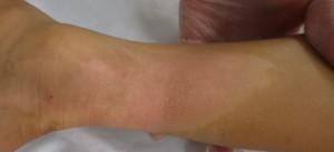 湿潤療法 加療後20日(下腿)