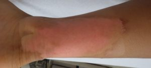 湿潤療法 加療後5日(下腿)