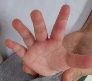 湿潤療法 加療後16日-1