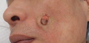 粉瘤(アテローム)摘出 術中(被膜ごと摘出された粉瘤)