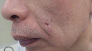 粉瘤(アテローム)摘出 術後47日
