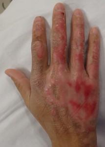 湿潤療法 加療後6日(右)