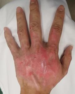 湿潤療法 加療後13日(左)