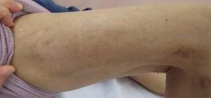 湿潤療法 加療後5か月2