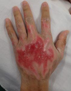 湿潤療法 加療後6日(左)