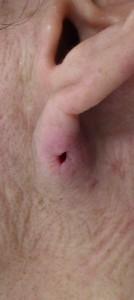 粉瘤(アテローム)摘出 術後1日