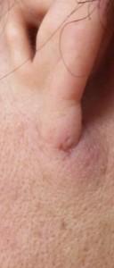 粉瘤(アテローム)摘出 術後10日