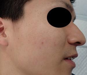 粉瘤(アテローム)摘出 術後3か月