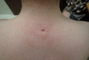 粉瘤(アテローム)摘出 術後22日