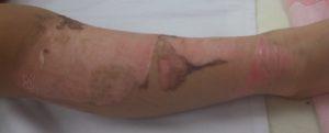 湿潤療法 加療後2日(右下腿側面)