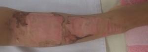 湿潤療法 加療後2日(右下腿正面)